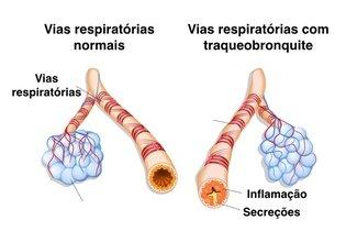 Inflamação dos brônquios