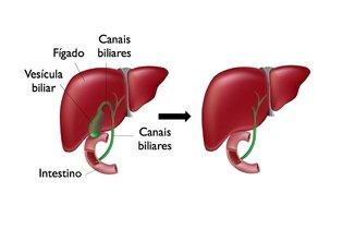 Fígado com e sem vesícula