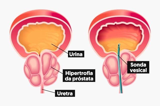 Tipos de cateterismo vesical: de alívio e de demora - Tua ...