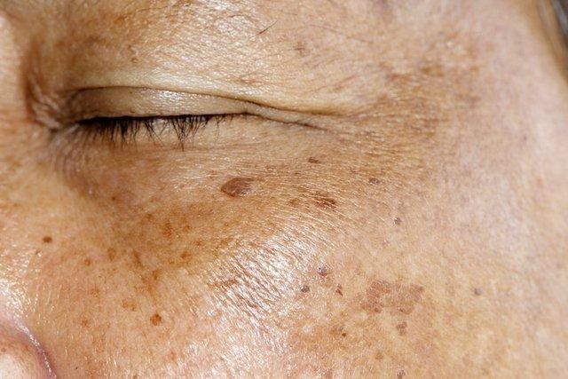 Melasma: o que é e como é feito o tratamento caseiro