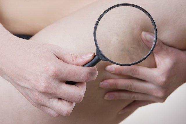 Como evitar trombose após a cirurgia