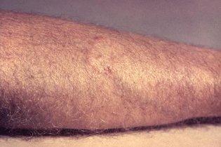 Impingem: O que é, principais causas e tratamento