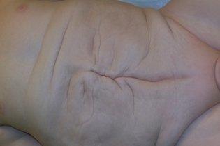 Entenda o que é e como se pode curar a Síndrome de Prune Belly