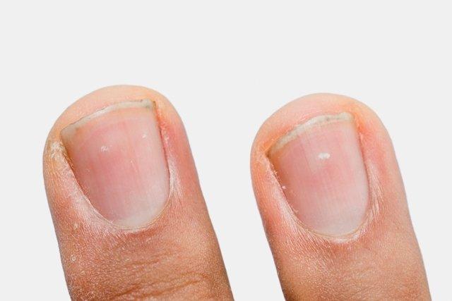 como se llaman los puntos blancos que salen en las uñas