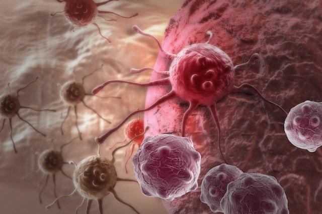 O que é Adenocarcinoma, principais tipos e tratamento