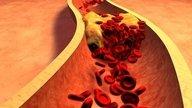 Colesterol Alto - o que comer e o que evitar