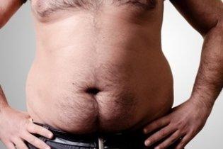 Acúmulo de gordura no homem