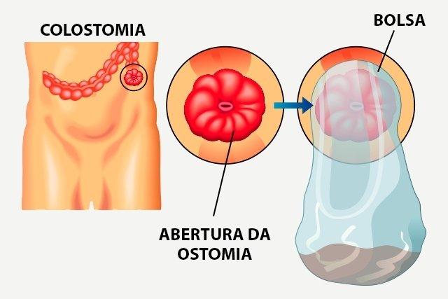 Como cuidar da colostomia e ileostomia
