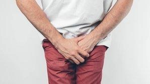 prostatitis crónica sangre espermática