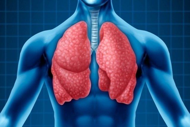 O que é a Pleurisia e principais sintomas