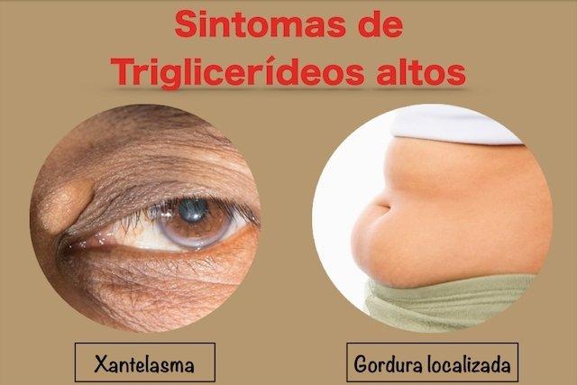 Sintomas de triglicerídeos altos