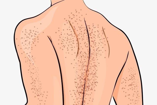 síntomas del tratamiento de púrpura