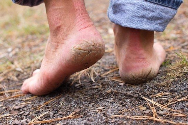 Amarelão - Doença causada por vermes