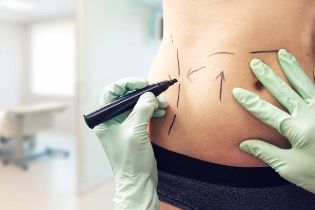 8 dúvidas sobre a recuperação da abdominoplastia