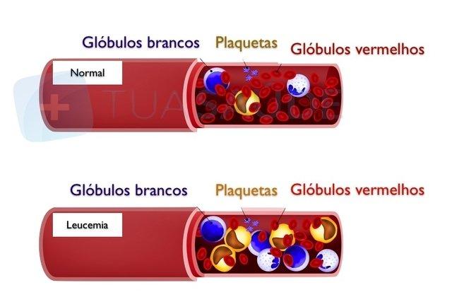 Sinais e sintomas agravantes em portadores de Esclerose MГєltipla