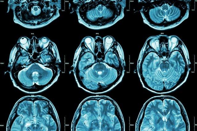 Malformação de Arnold-Chiari: o que é, tipos e como é feito o tratamento