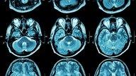 Síndrome de Arnold-Chiari: o que é, tipos, sintomas e tratamento