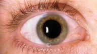 Ojos rojos: 9 causas comunes y qué hacer