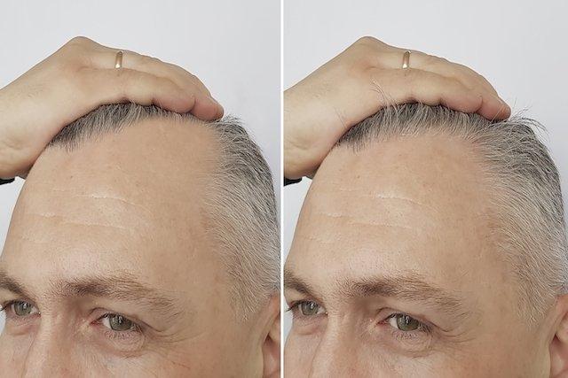 Carboxiterapia Capilar: Como é o tratamento para crescer e nascer mais cabelo