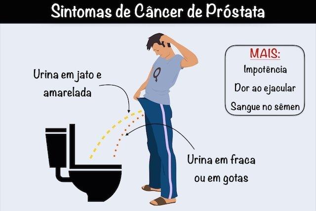 10 sinais que podem indicar Câncer de Próstata