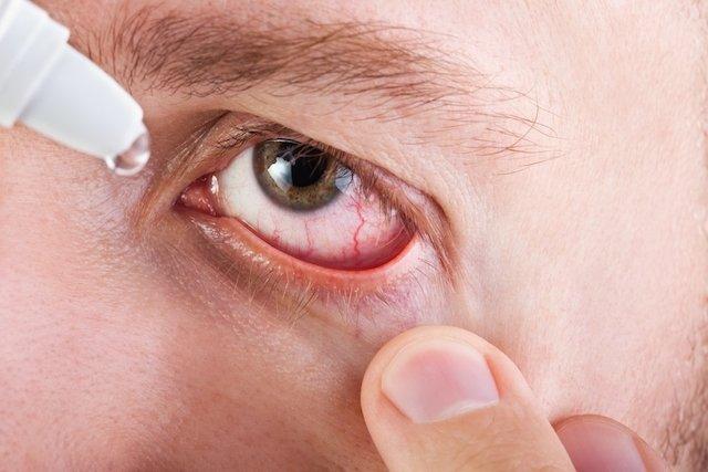 Sintomas de conjuntivite alérgica e como tratar