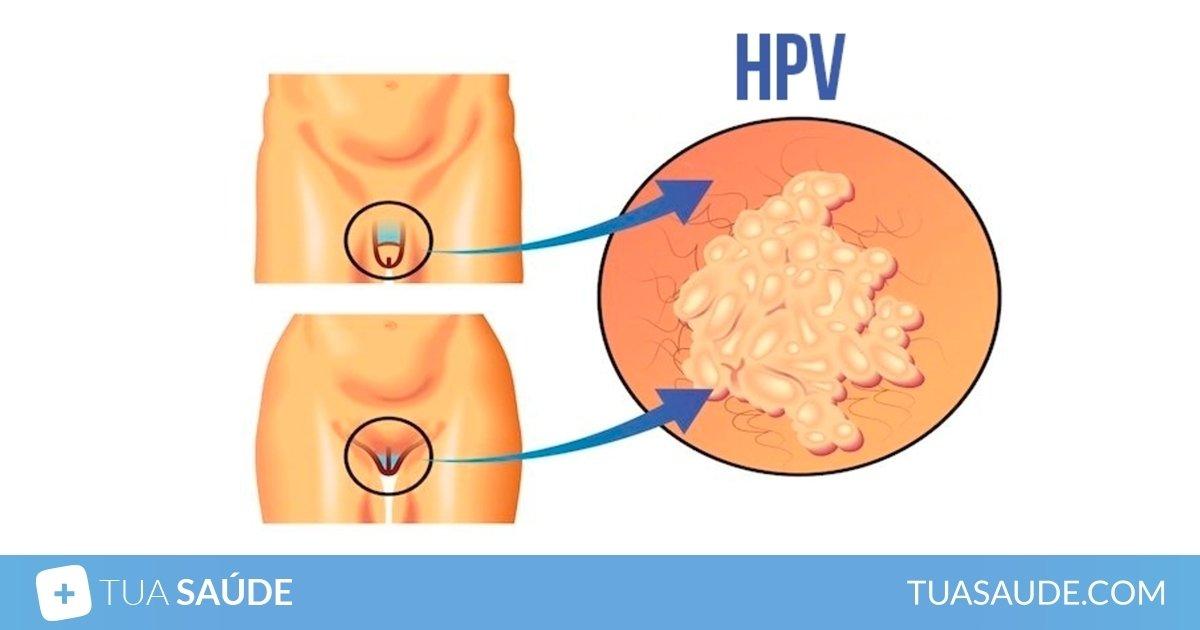 Hpv primi sintomi - Oxiuros lysteria - Sintomi hpv genitale