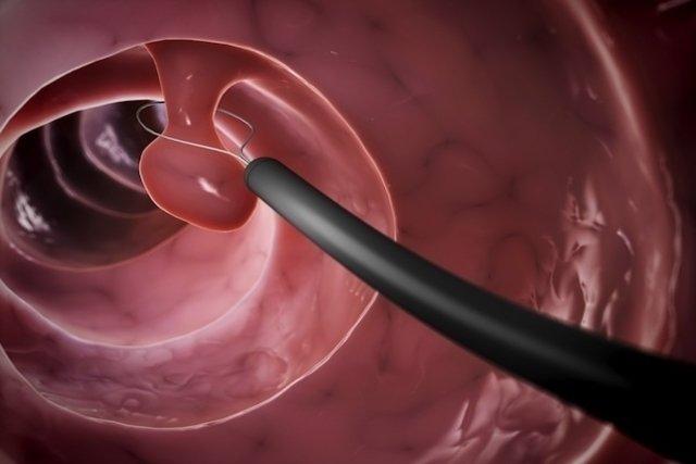 O que é pólipo intestinal, sintomas, causas e tratamento