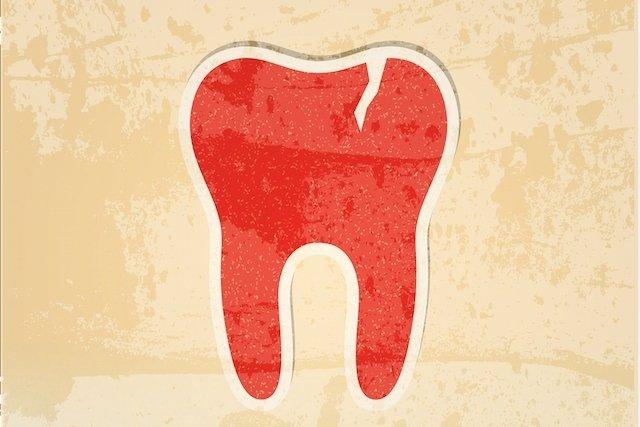 O que fazer em caso de dente trincado