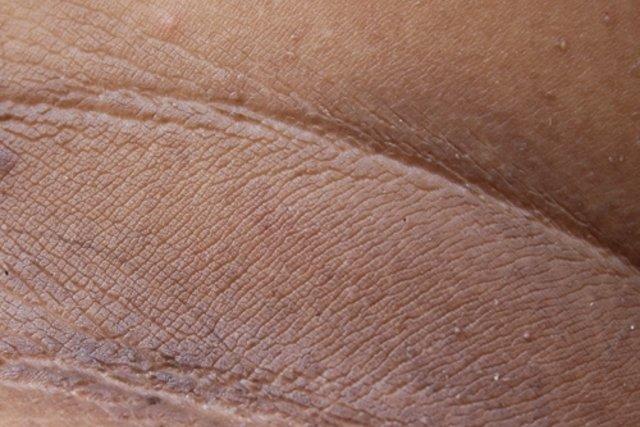 hongos en la espalda manchas marrones