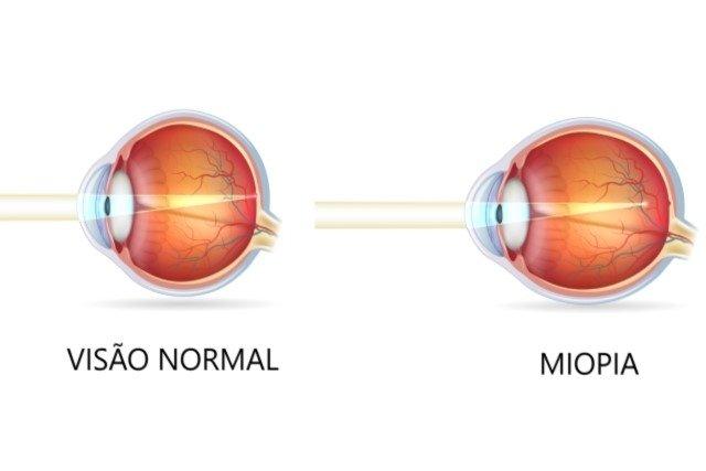 Como identificar a Miopia e o que fazer para curar