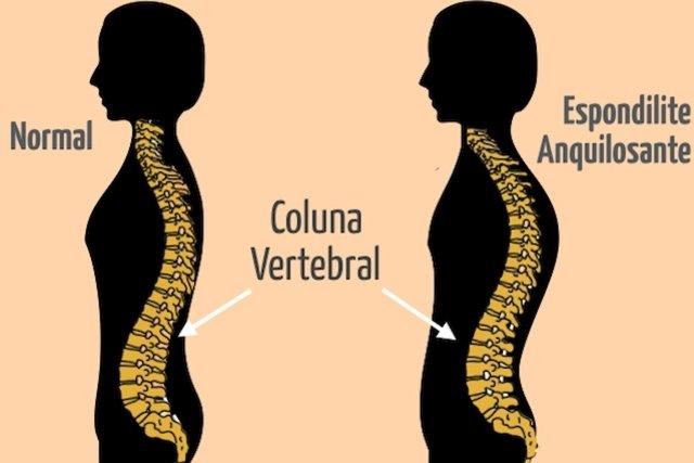 Impacto e alterações que a Espondilite Anquilosante provoca na Coluna Vertebral.