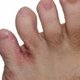 Symptoms and treatment of athlete's foot (tinea pedis)