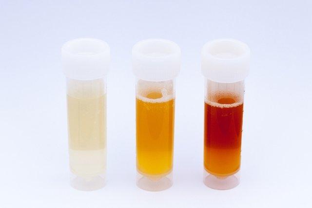 O que pode ser urina com sangue e o que fazer