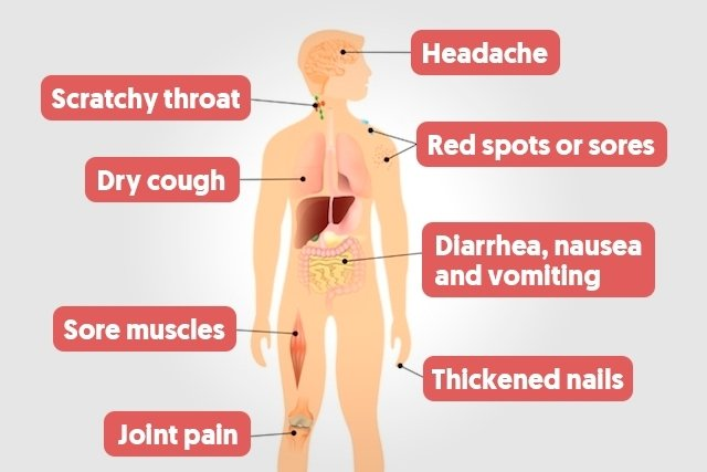 Main HIV/AIDS symptoms