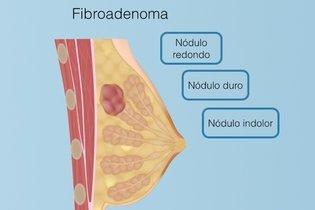 Sintomas de fibroadenoma da mama
