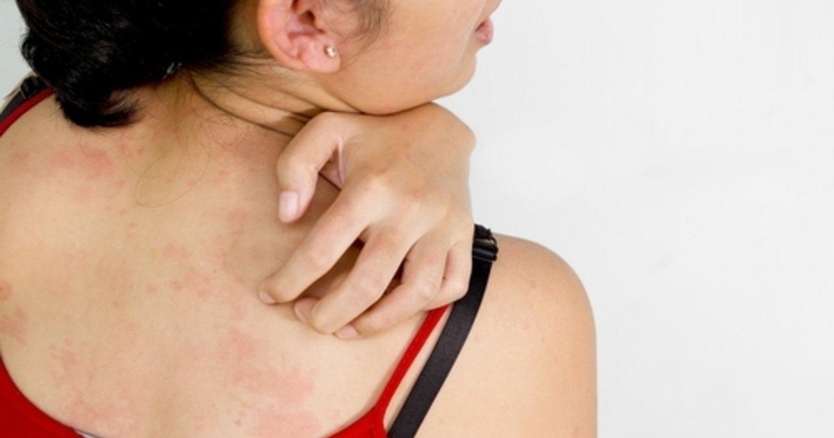 que hacer ante una reaccion alergica en la piel
