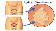 HPV tem cura?