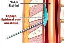 Anestesia peridural