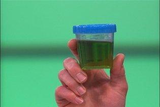 Saiba o que pode deixar a Urina Verde