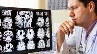 Crise de Epilepsia