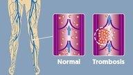 Qué es la trombosis, principales síntomas y tratamiento