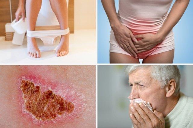 Signos y síntomas que pueden indicar cáncer