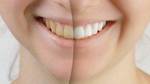 ¿Cómo blanquear los dientes? Los mejores remedios caseros