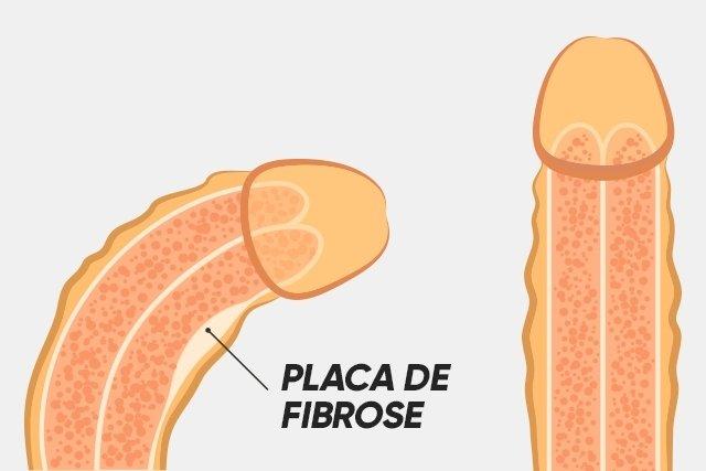 Como identificar e tratar a doença de Peyronie