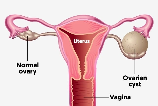 left ovary diagram diagram schematic ideas  left ovary diagram #6