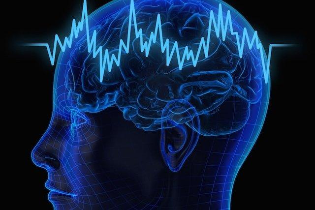 Para que serve o Eletroencefalograma e como é feito