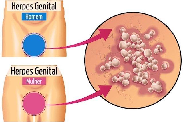 Sintomas de herpes genital