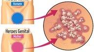 Saiba como reconhecer os sintomas da herpes