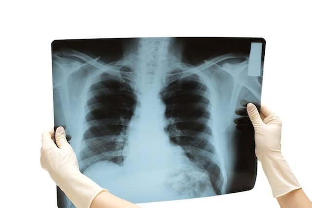Sintomas de fratura na costela e o que fazer para recuperar