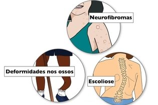 Sintomas da neurofibromatose do tipo 1